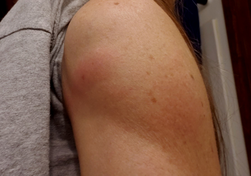 Rash side of shoulder and welt front-1